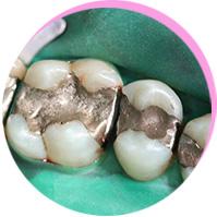 <p>Amalgam-<br /><br />Sanierung</p><br />
