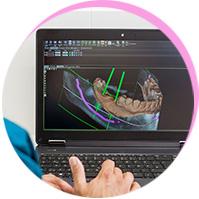 <p>3D-navigierte<br /><br />Implantologie</p><br />